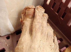 Dead Egyptian feet; enough to put me off my breakfast